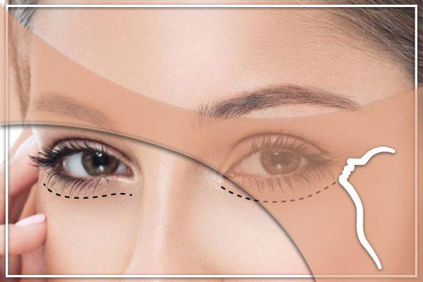 göz kapağı altı ameliyatı